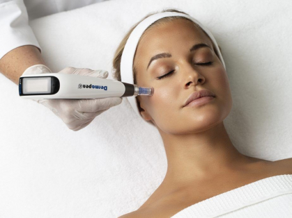 3 x Full Face Skin Needling: $199 Each, Think Local Deal, Ozderm Clinic