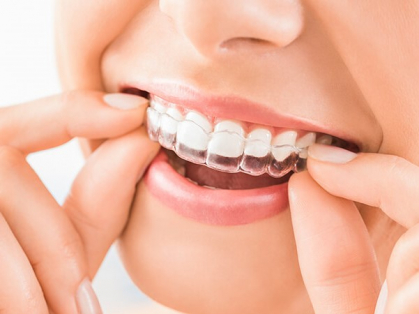Full Braces/Invisalign from $64 a Week!