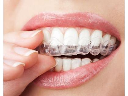 Save $499 on Teeth Whitening