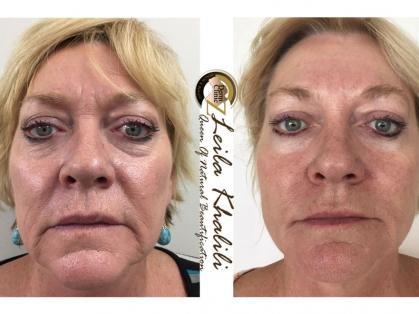 35% off Dermal Filler/Anti-Wrinkle Pack