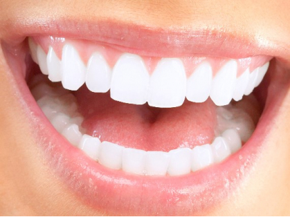 $499 Off Teeth Whitening in Warriewood, Think Local Deal, United Dental Clinic
