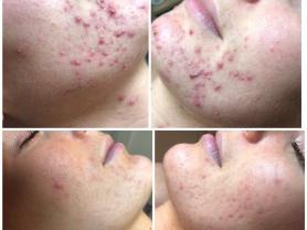 4 Week DMK Acne Treatment Save $300, Think Local Deal, Beachside Beauty