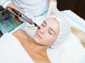 30% Off First Dermapen Needling Save $90