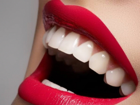 Professional Teeth Whitening Only $299!
