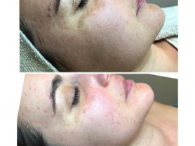 2 DMK Enzyme Therapy Sessions just $240