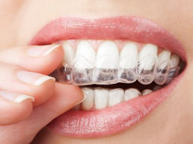 Save $499 on Teeth Whitening