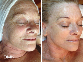 2 DMK Enzyme Treatments $240, Save $100, Think Local Deal, Beachside Beauty