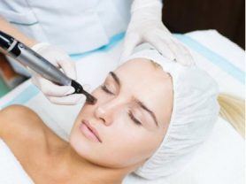 Full Face Skin Needling 3 Pack Save $298, Ozderm Clinic, Think Local Deal