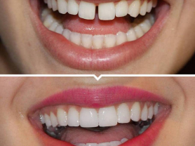 Save a HUGE 30% on Invisalign Treatment, Think Local Deal, Northern Beaches Dental Group