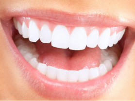 50% Off Teeth Whitening in Warriewood, Think Local Deal, United Dental Clinic