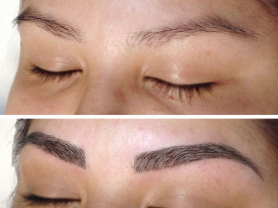 50% Off Eyebrow Microblading $400, Think Local Deal, SkinFit Therapy