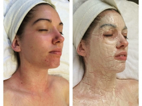 $300 off Amazing 4 Week Acne Treatment, Think Local Deal, Beachside Beauty