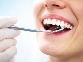 Check Up and Clean Only $150, Save $120, Think Local Deal, Northern Beaches Dental Group