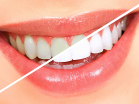 Up To 8 Shades Whiter Teeth in 90 Mins, Think Local Deal, United Dental Clinic