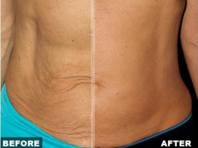 30% off Fibroblast Tummy Lift Save $270!, Think Local Deal, Beachside Beauty